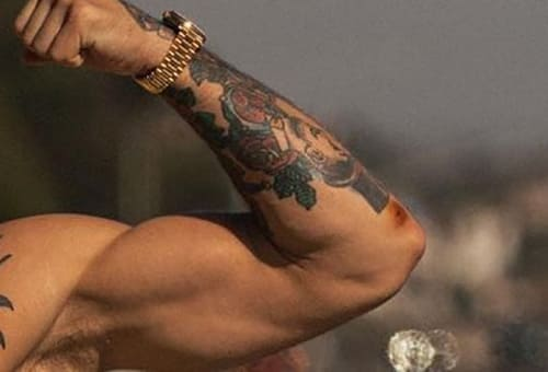 UFC fans worried that Conor McGregor is showing signs of staphylococcal infection ahead of UFC 264